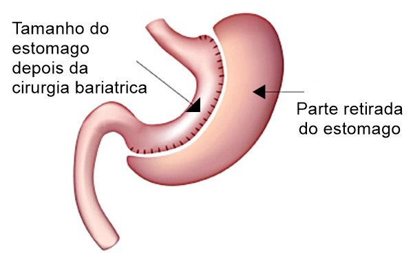 cirurgia-bariatrica-hj