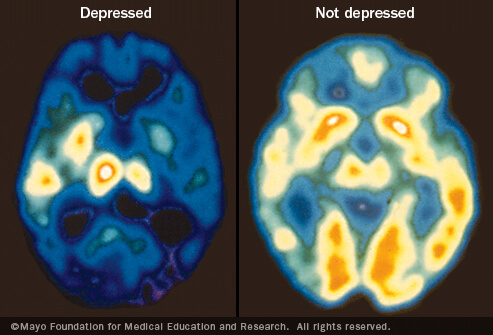 mayo_c7_pet_depression1